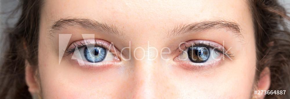 Ein Mensch, zwei Augenfarben (Heterochromie) – Wie kommt es dazu ?